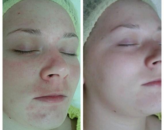 Глубокое очищение кожи головы и волос